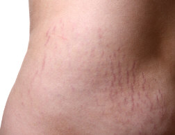 stretch marks All About Stretch Marks   How A Stretch Mark Develops And How To Treat It